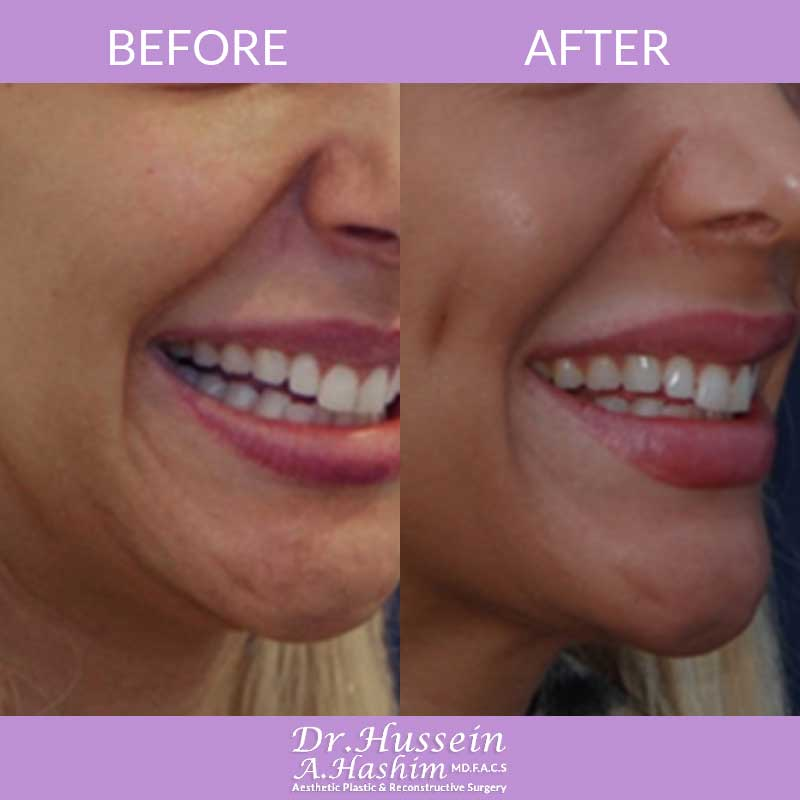 image 2 Before after of Dimple creation Lebanon
