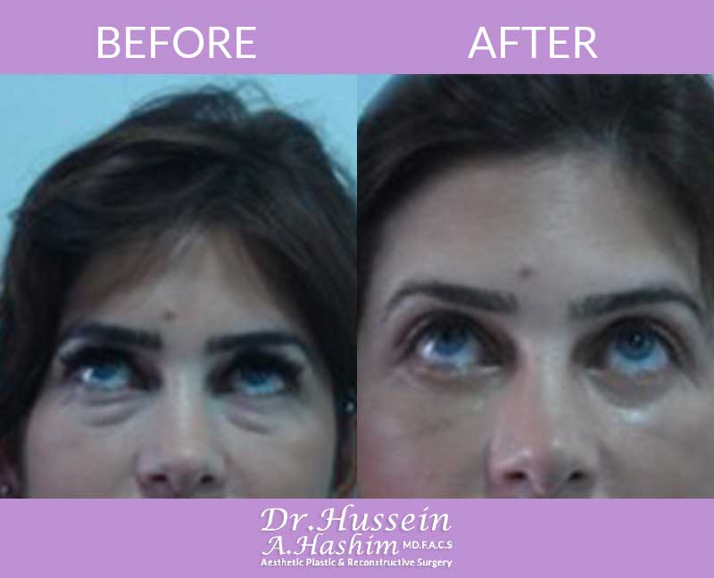 image 3 Before after of eye lift Lebanon