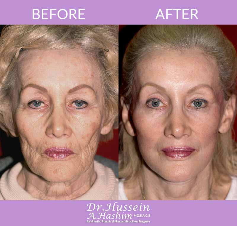 image 1 Before after of Face lift procedure Lebanon