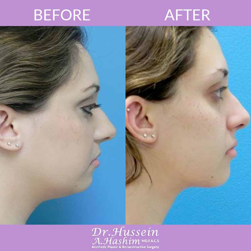 image 2 Before after of Facial liposculpture Lebanon