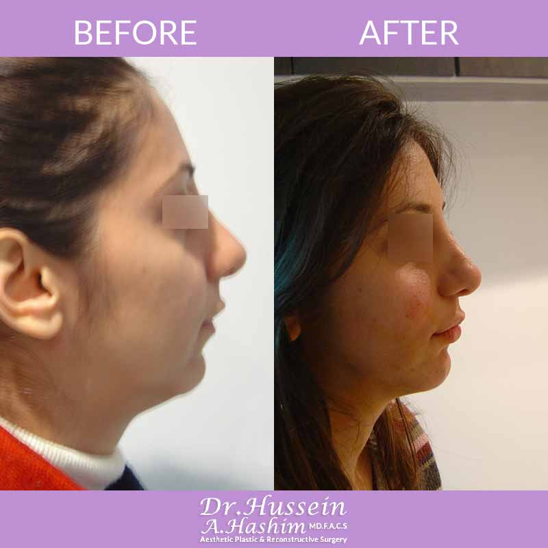 image 1 Before after of Facial liposculpture Lebanon