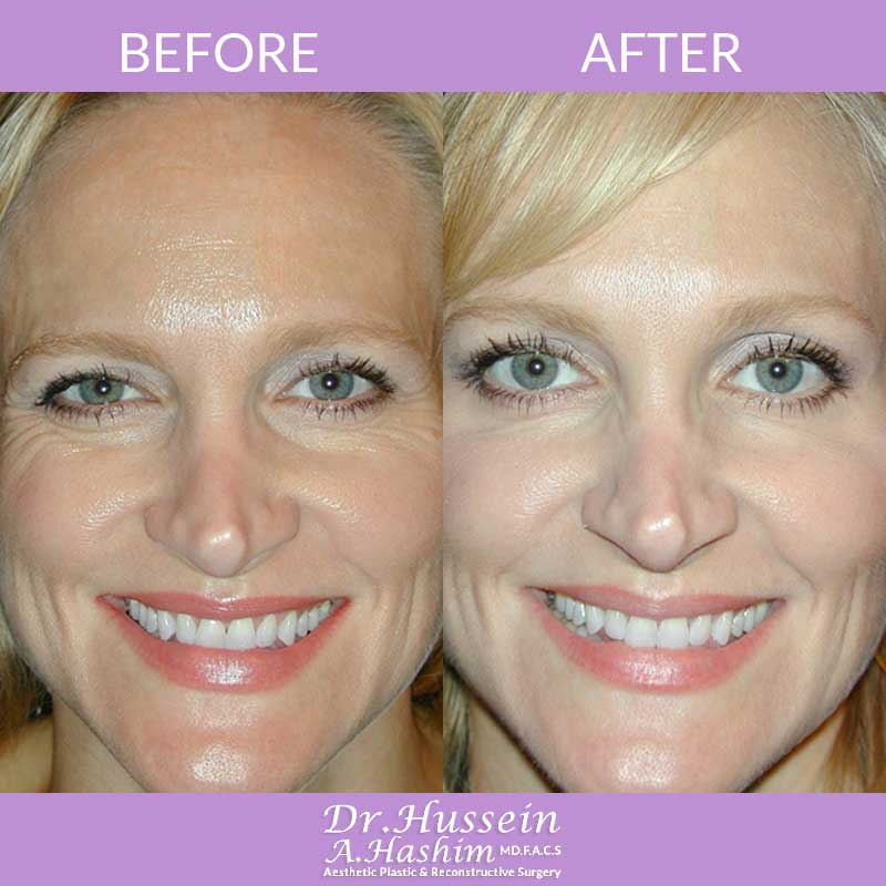 image 1 Before after of fillers and botox Lebanon