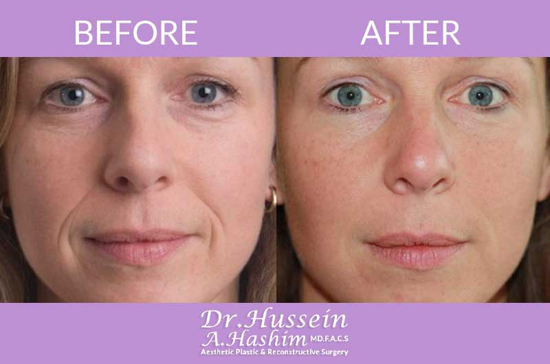 image 3 Before after of fillers and botox Lebanon