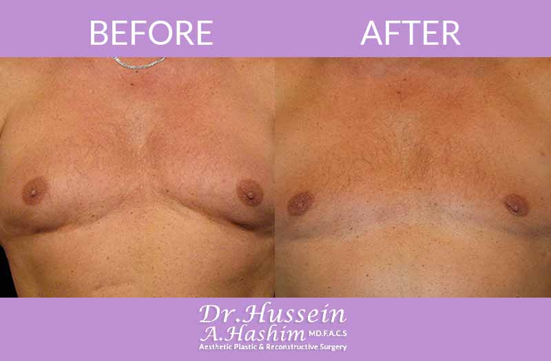 image 3 Before after of Gynecomastia Lebanon