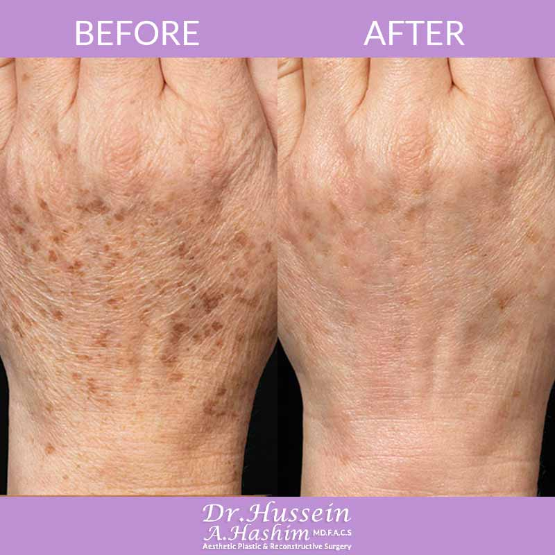 image 2 Before after of hand rejuvenation Lebanon