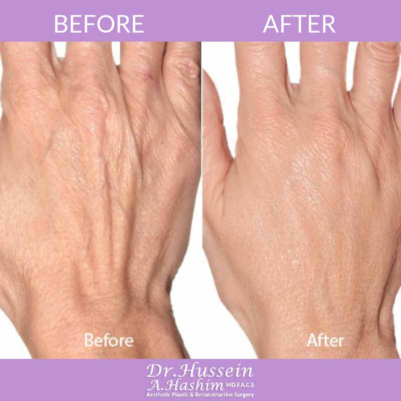 image 3 Before after of hand rejuvenation Lebanon