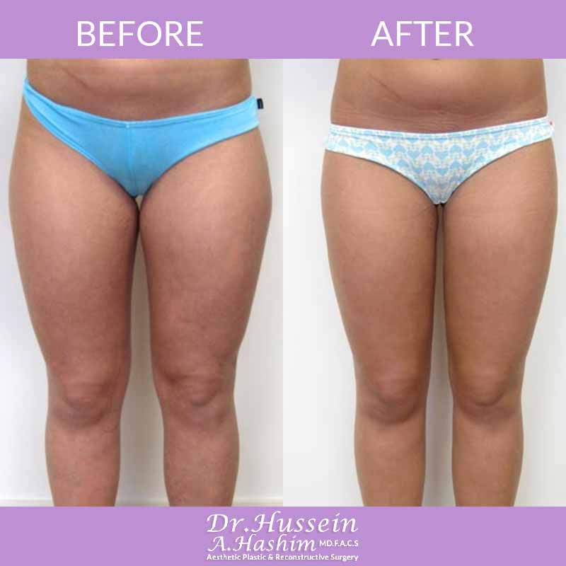 image 2 Before after of Liposculpture Lebanon