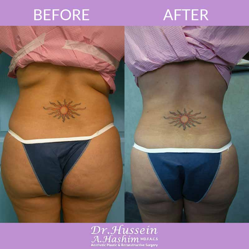 image 3 Before after of Liposculpture Lebanon