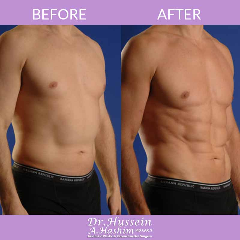 image 2 Before after of men liposculpture Lebanon