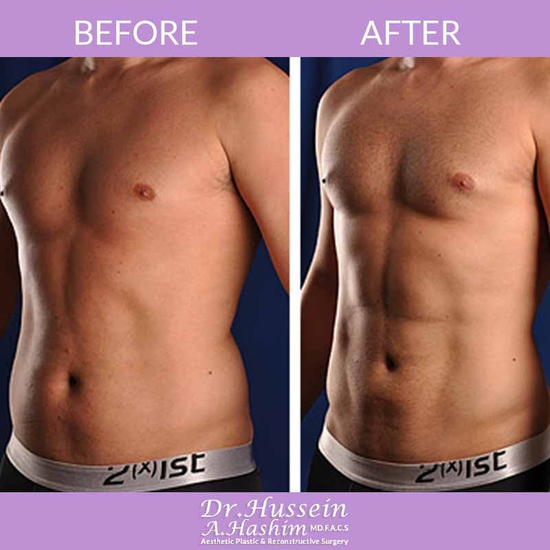 image 3 Before after of men liposculpture Lebanon