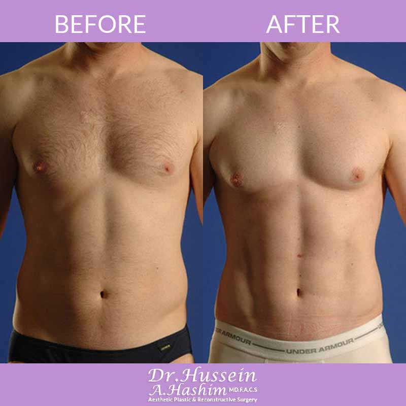 image 1 Before after of men liposculpture Lebanon