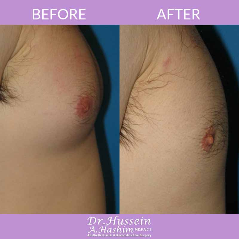 image 1 Before after of Gynecomastia Lebanon