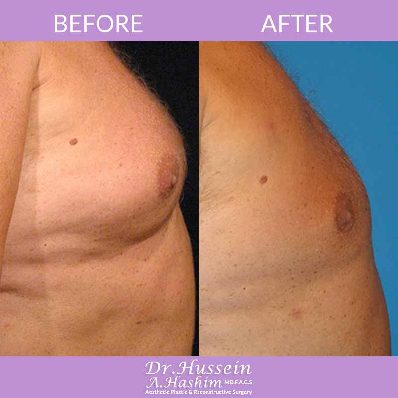 image 2 Before after of Gynecomastia Lebanon