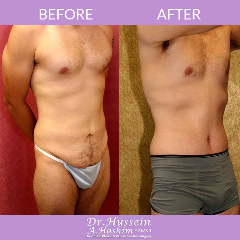 image 2 Before after of male abdominoplasty Lebanon