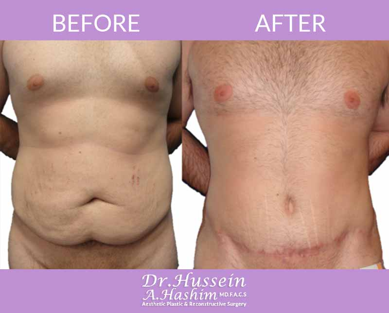 image 6 Before after of male abdominoplasty Lebanon