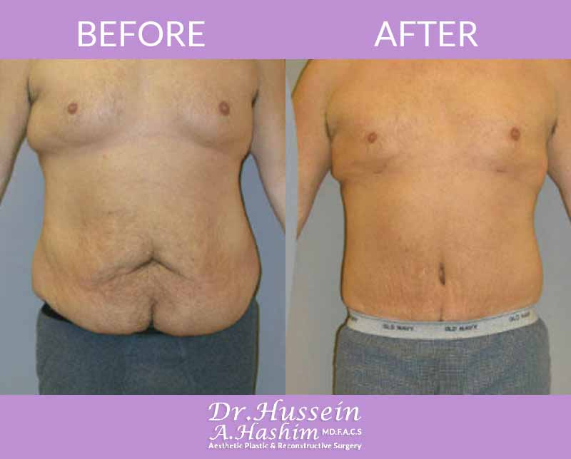 image 5 Before after of male abdominoplasty Lebanon