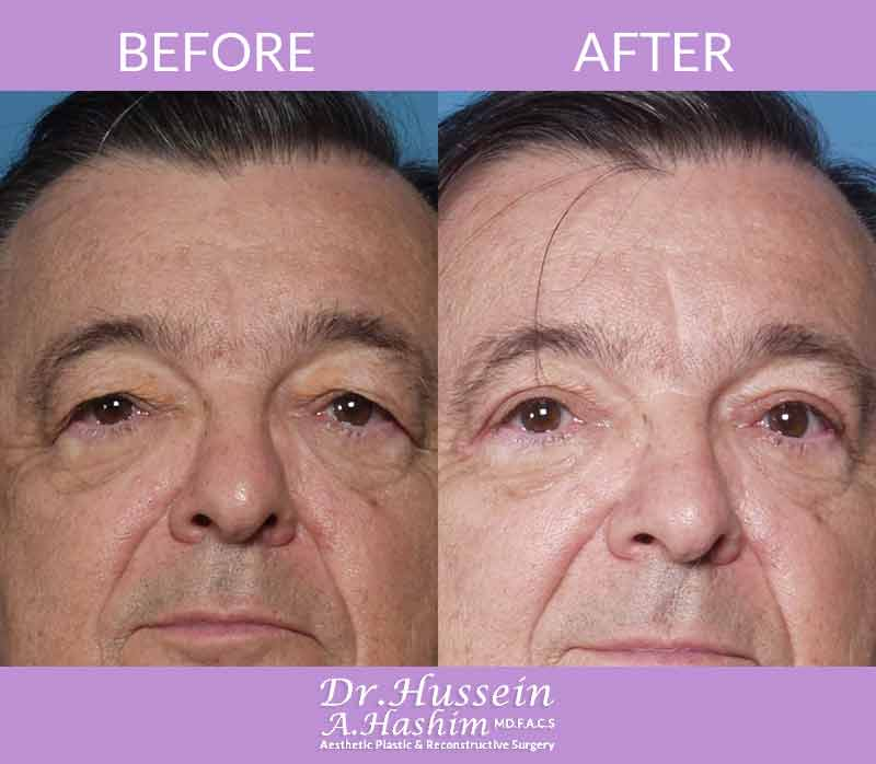 image 7 Before after of eye lift Lebanon
