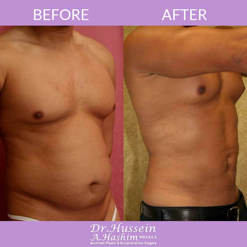 image 4 Before after of men liposculpture Lebanon