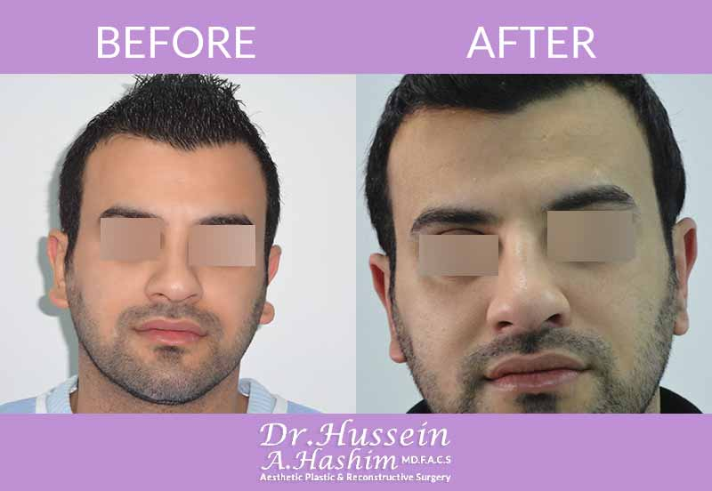 image 5 before after ear surgery Lebanon