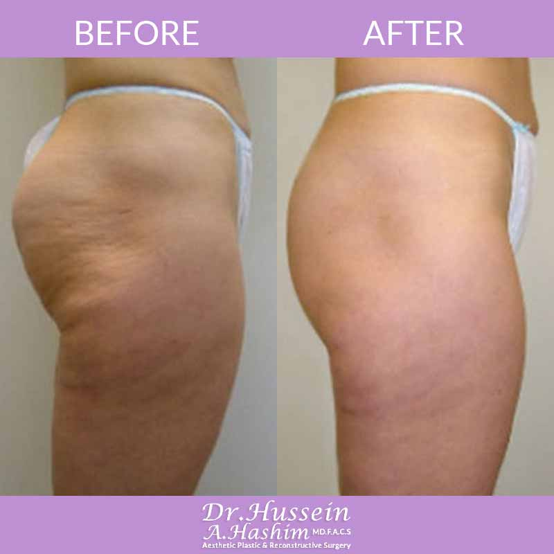 image 1 Before after of skin tightening Lebanon
