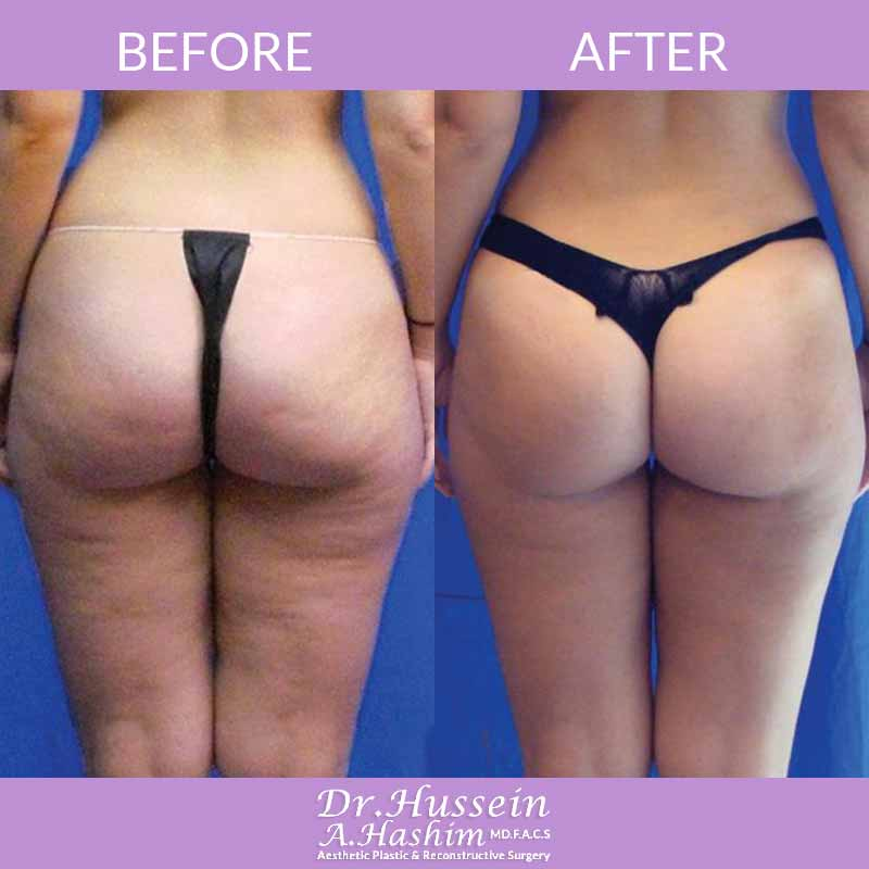 image 3 Before after of skin tightening Lebanon