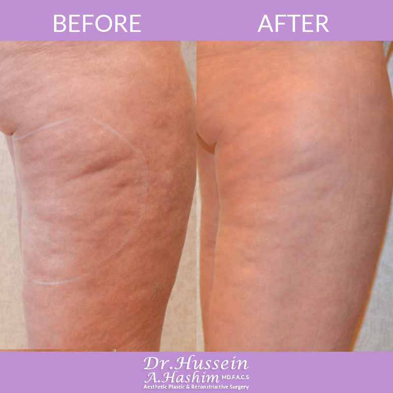 image 5 Before after of skin tightening Lebanon