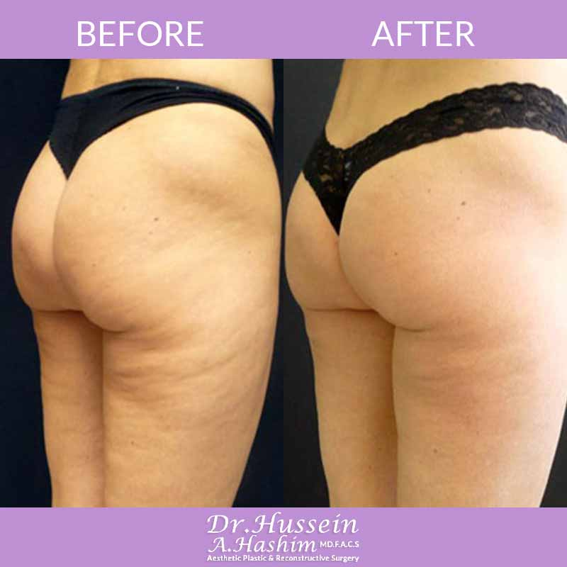 image 6 Before after of skin tightening Lebanon
