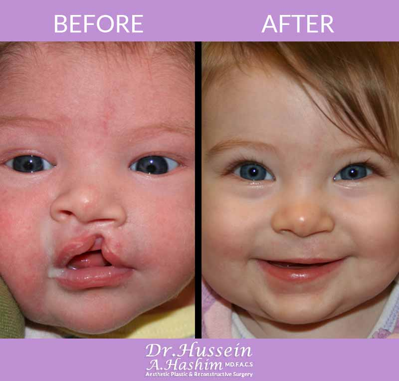 image 2 Before after of cleft lip surgery Lebanon