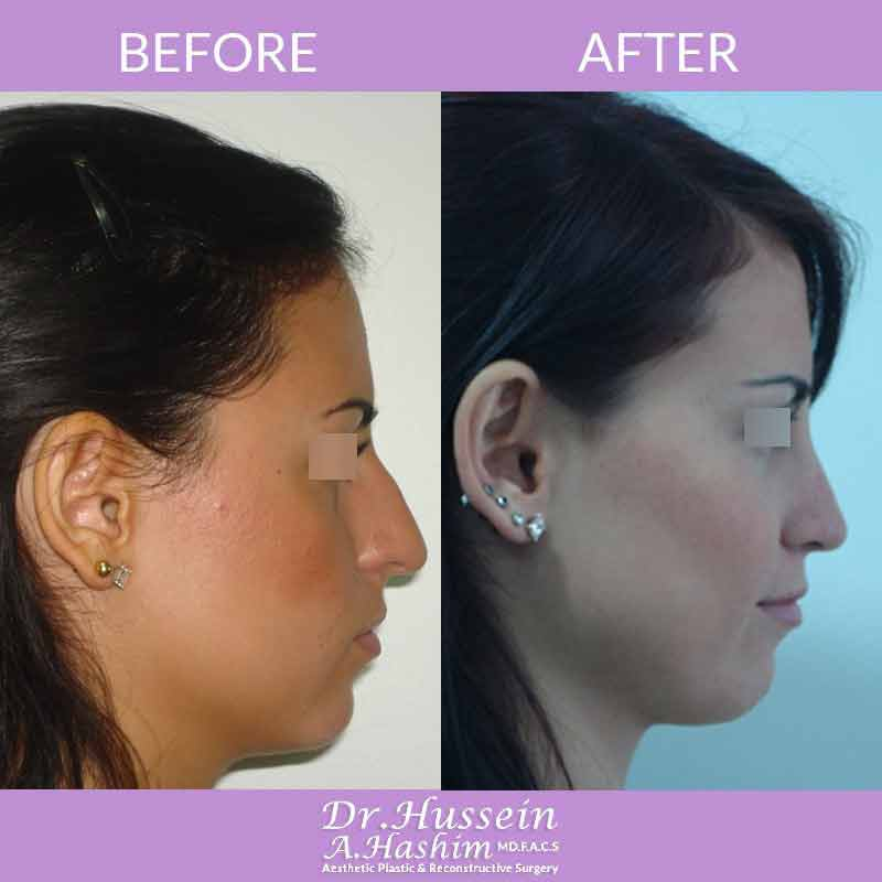 image 4 Before after of nose reshaping or nasoplasty lebanon by