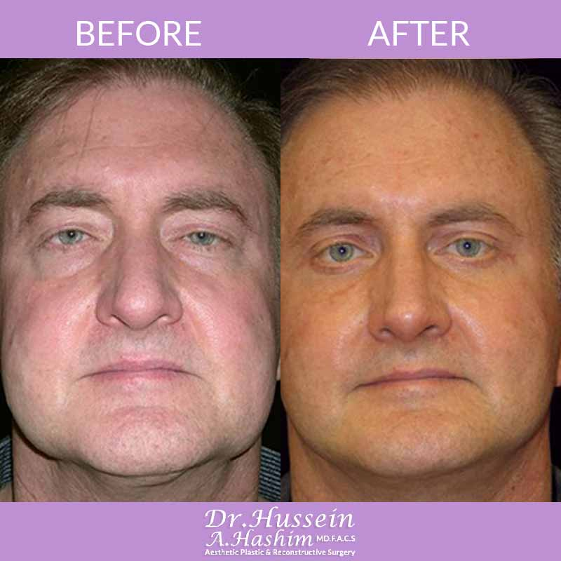 image 5 Before after of Face lift procedure Lebanon