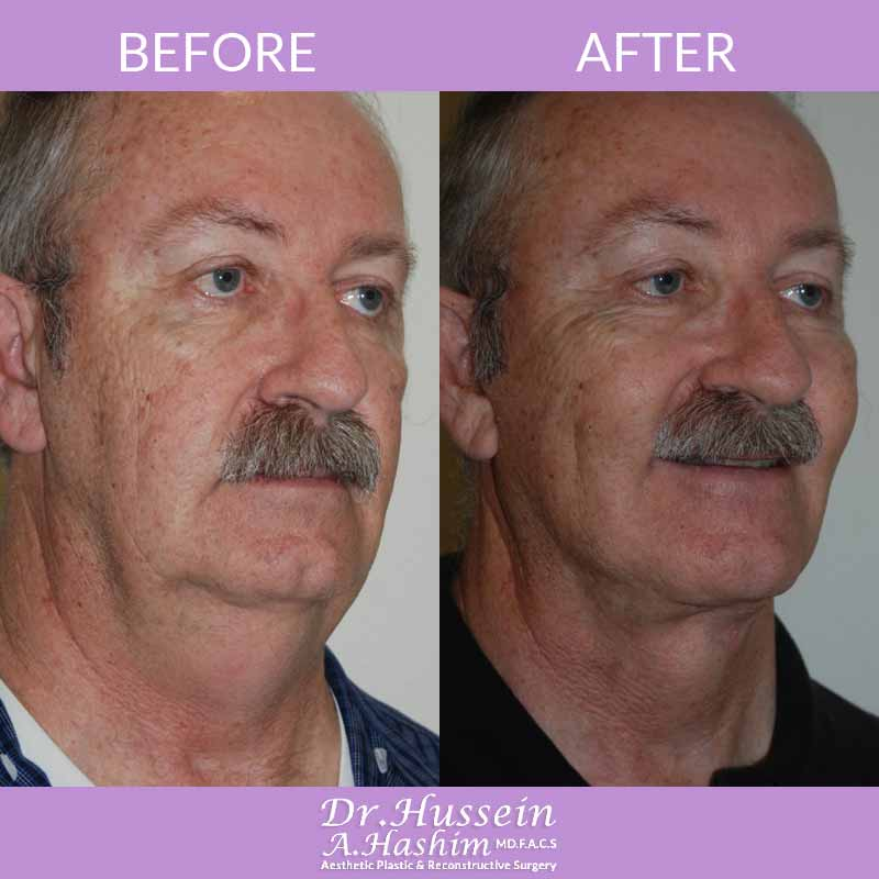 image 4 Before after of Face lift procedure Lebanon